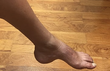 Challenge Case Report: Weakness and Wasting of the Left Foot With Pes Cavus image