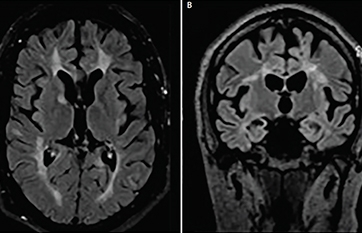 Case Report: Hemiparkinsonism in a Patient With Multiple Sclerosis image