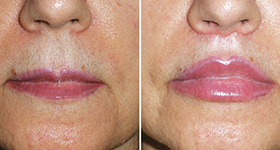 Lip Lifts: A Procedure to Consider image