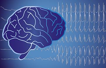 Epilepsy & Seizures image