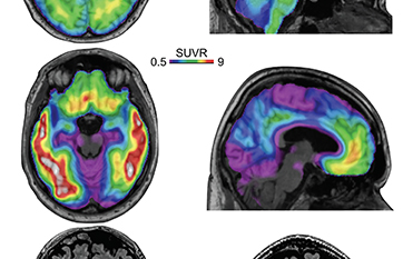 Alzheimer's Disease Biomarkers image