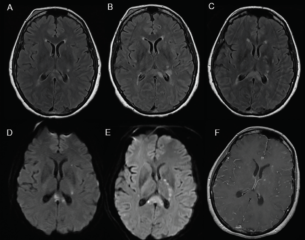 Axial T2 fluid-attenuated inversion recovery (FLAIR) images at initial presentation (A) and 5 (B) and 15 days later (C) show hyperintense lesions in the splenium of the corpus callosum, external capsule, and periventricular white matter/internal limb of the internal capsule. Axial diffusion-weighted (DW) image at initial presentation (D) demonstrates foci of restricted diffusion in the splenium of the corpus callosum, external capsule, periventricular white matter/posterior limb of the internal capsule, which were seen to progress on images taken 15 days later (E). Axial spin-echo T1 postcontrast shows leptomeningeal enhancement (F).