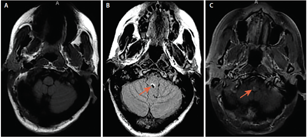 Figure 2. Area Postrema Syndrome From Dorsal Medullary Lesion. Axial brain MRI (A) and axial fluid-attenuated inversion recovery