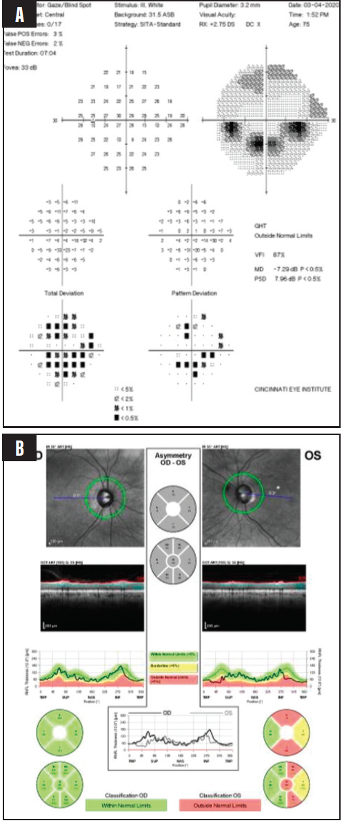 <p>Figure 12. Visual fields (A) and OCTs (B) for a 75-year-old man with severe pseudoexfoliative glaucoma.</p>