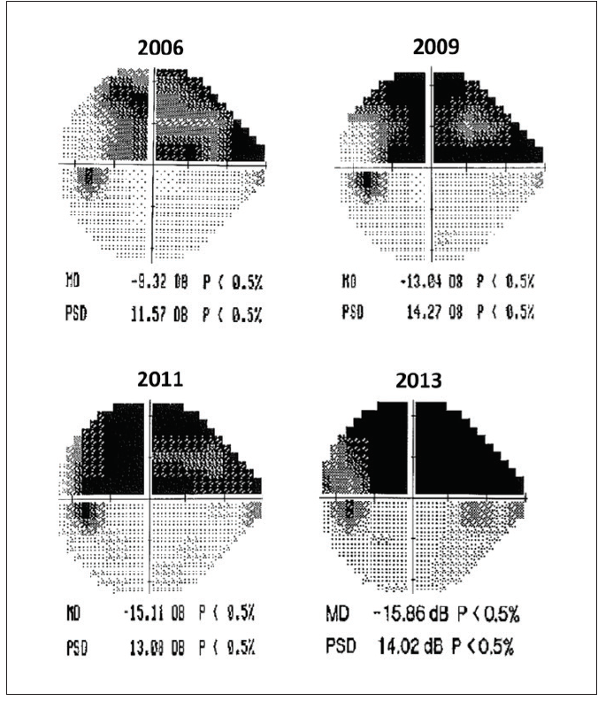 <p>Figure 1. Progressive visual field loss occurred from 2006 to 2013.</p>