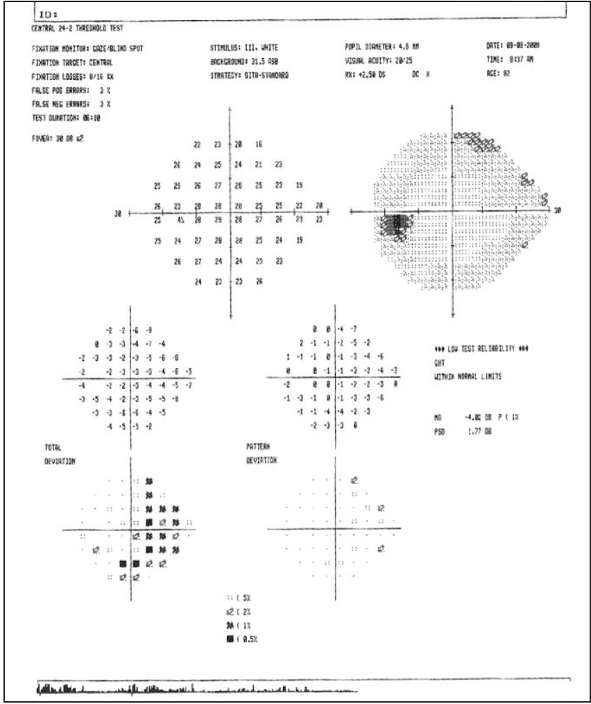 <p>Figure 6. The patient's visual fields in 2008, prior to seeing Dr. Vora.</p>