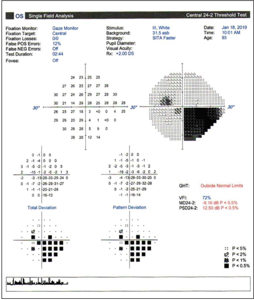 <p>Figure 7. The patient's visual fields in 2019, when she first visited Dr. Vora.</p>