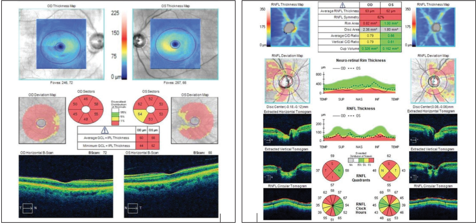 <p>Figure 9. The patient's ganglion cell layer was almost negligible, the ganglion cell complex was wiped out, and the retinal nerve fiber layer in both eyes was extremely thin.</p>