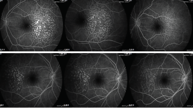<p>Figures 11 and 12. Lesions showed late hyperfluorescence with progressive staining but no diffusion on fluorescein angiography at 4 years follow-up.</p>