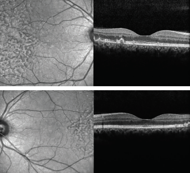 <p>Figures 3 and 4. SD-OCT demonstrated large drusen in the temporal macula bilaterally, with no changes within the retina outside the foveal area.</p>