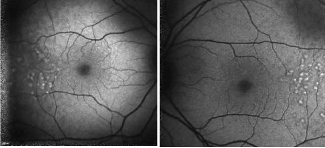 <p>Figures 7 and 8. Hyperautofluorescent lesions appeared 3 years after initial presentation.</p>