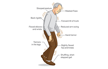 Movement Disorders image
