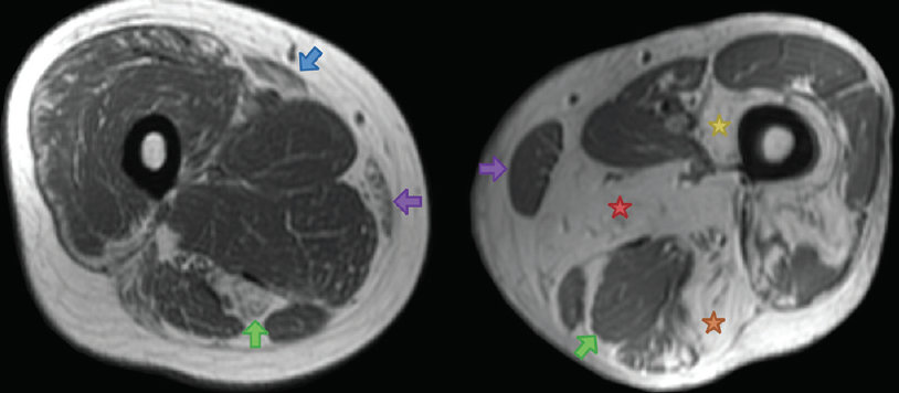 <p>Figure 3. Thigh muscle findings in myofibrillar myopathies. In desminopathies (left), MRI findings show preferential involvement of the semitendinosus (green arrow), sartorius (blue arrow), and gracilis (purple arrow), with sparing of the adductors and other posterior thigh muscles. In contrast, in myotilinopathies (right) and filaminopathies, the biceps femoris (orange star), adductor magnus (red star), semimembranosus (blue star), and vastus medialis (yellow star) are most affected, and the semitendinosus (green arrow), and gracilis (purple arrow) are spared.</p>