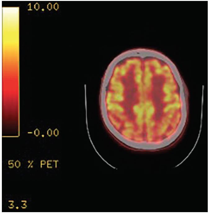 <p>Figure. PET Scan showing reduced activity posteriorly.</p>