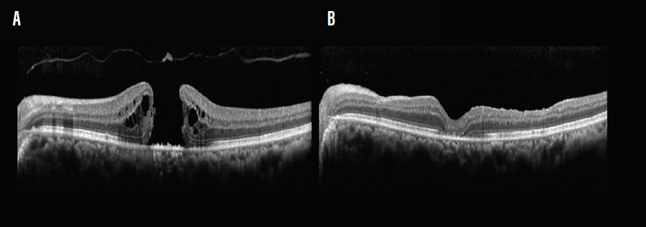 <p>Figure 2. Idiopathic macular hole. Preoperative OCT of a 65-year-old woman shows a large full-thickness macular hole with cystoid spaces (A). At 1 month postoperative, OCT shows a type 1 closure (B).</p>