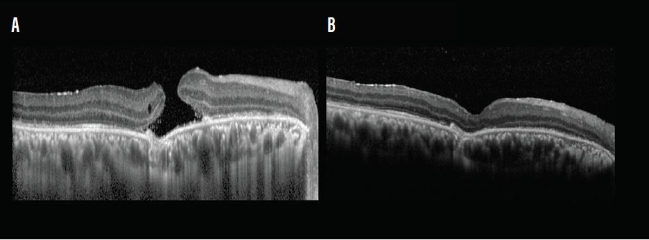 <p>Figure 3. Traumatic macular hole. Preoperative OCT of a 40-year-old man shows a traumatic macular hole (A). At 1 month postoperative, OCT shows anatomic closure of the hole (B).</p>