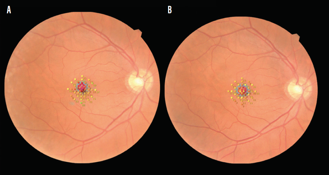 <p>Figure 4. Fundus photography shows retinal sensitivity using microperimetry. Preoperative scans of a 60-year-old patient show reduced sensitivity in the foveal area corresponding to a macular hole. The retinal sensitivity in the parafoveal area where the RM would be used can be noted (A). At 1 month postoperative, scans show almost identical retinal sensitivity in the parafoveal area, indicating that the act of massaging did not cause detrimental effects on retinal sensitivity. Also, the retinal sensitivity in the foveal area has improved corresponding to hole closure (B).</p>