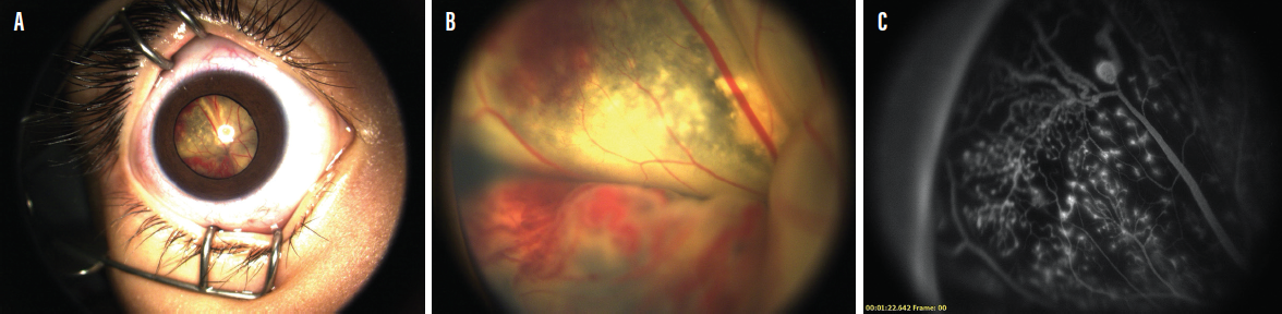 <p>Figure 1. A 3-year-old patient presented to the clinic with no light perception in his right eye. External examination (A), fundus examination (B), and FA (C) helped clinicians identify a retinal detachment.</p>