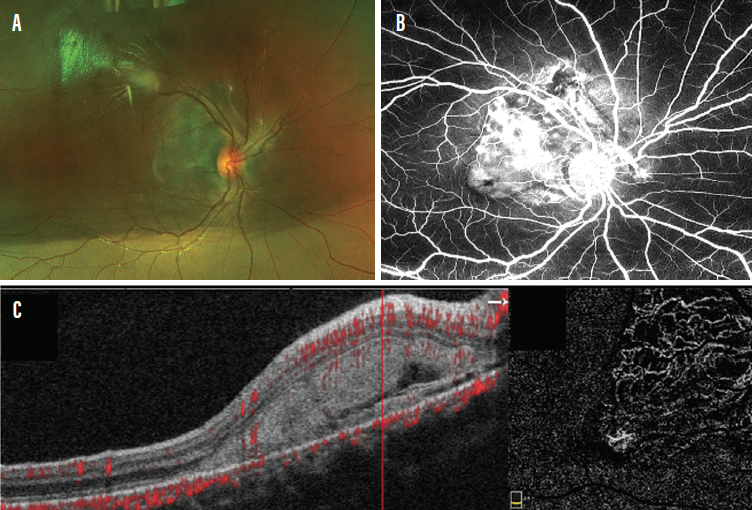 <p>Figure 3. A large peripapillary subretinal lesion was detected in a 9-year-old patient with counting fingers vision (A). Vascularization of the lesion was noted on FA (B), and subretinal hyperreflective material was observed on OCTA (C).</p>
