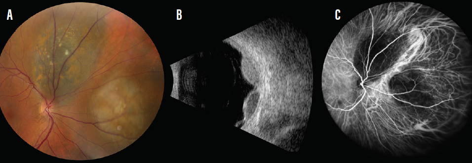 <p>Figure. Multifocal choroidal melanoma in the right eye of a 56-year-old woman (A). B-scan ultrasonography showed two distinct hollow, dome-shaped lesions with subretinal fluid (B). Evaluation with indocyanine green angiography documented hypocyanescence at the two tumor sites with normal choroidal flow in between, implying two distinct tumors (C).</p>