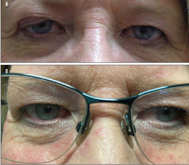 <p>Figure 1. Large right upper eyelid chalazion present for 3 months (A). Same patient 3 weeks after I&C (B). Notice the complete resolution of the right upper eyelid chalazion.</p>
