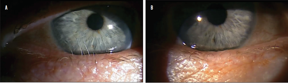 <p>Figure 2. Six aberrant eyelashes rubbing against the cornea, causing significant symptoms (A). Six weeks after radiofrequency ablation of all aberrant eyelashes (B), the patient had complete resolution of symptoms.</p>