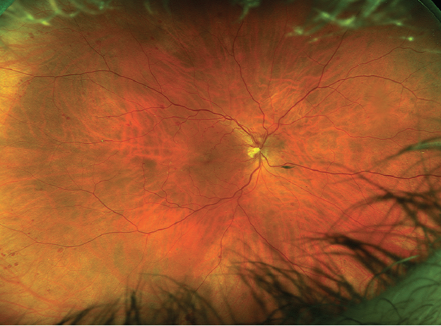 <p>Figure 1. A CRVO can be seen in the patient's right eye.</p>
