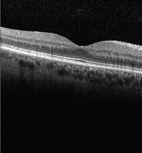 <p>Figure 3. OCT of the right eye shows no macular edema or retinal opacities.</p>