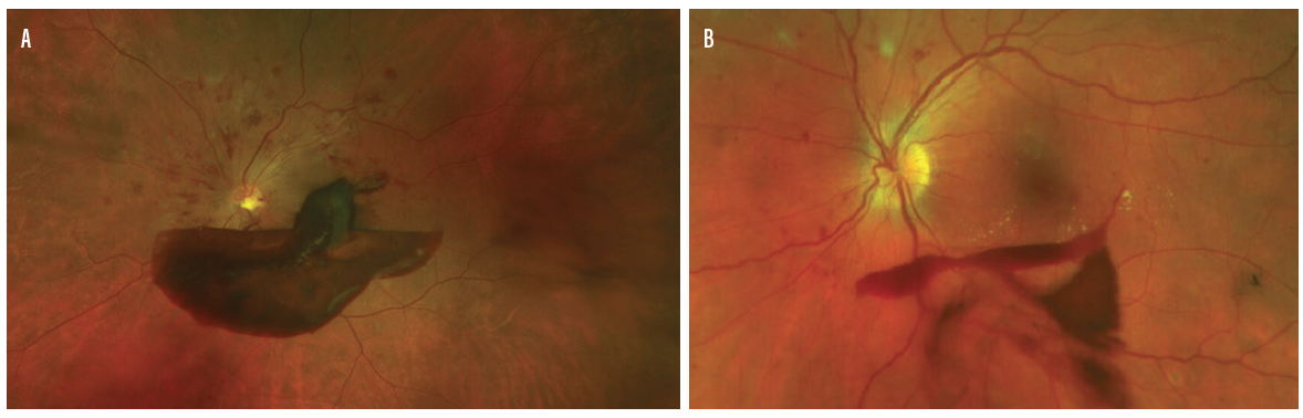 <p>Figure. UWF imaging performed by referring physicians helps offices prioritize patients by pathology. UWF imaging depicting a subhyaloid hemorrhage secondary to proliferative diabetic retinopathy (A) and a diabetic vitreous hemorrhage (B) are seen here.</p>