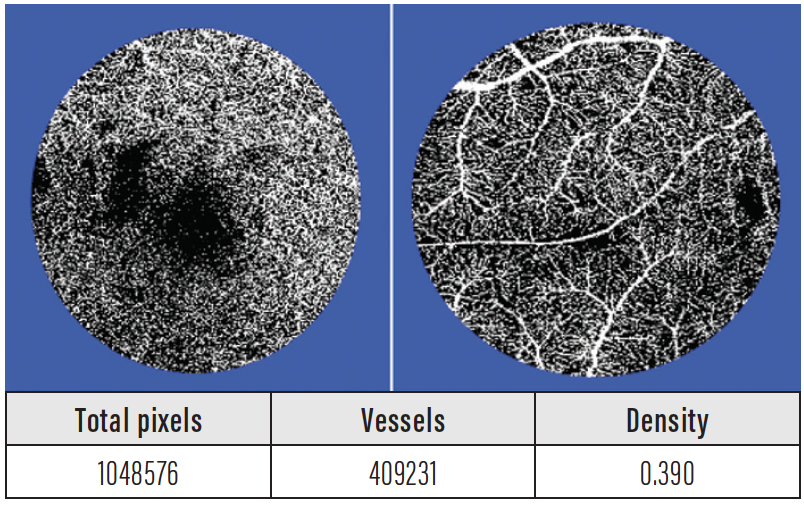 <p>Figure. A deep vascular density (DVD) image generated by ImageJ. On the left is the fovea-centered image; on the right, the temporal retina. At bottom, the output calculated by ImageJ (here, for deep foveal capillary density).</p>