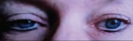 <p>Figure. Patient with a right Horner syndrome, seen via telemedicine. Upper and lower eyelid ptosis is present in the right eye. The right pupil is smaller than the left pupil.</p>