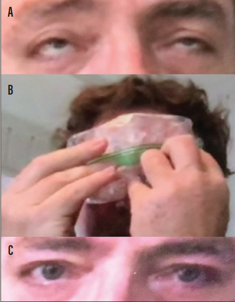 <p>Figure 2. Ice test in a patient with myasthenia gravis, seen via telemedicine. Patient attempting sustained upgaze with bilateral upper eyelid ptosis prior to ice test showing bilateral fatiguability (A). Ice test performed by patient (B). Patient with improved ptosis after ice test (C).</p>