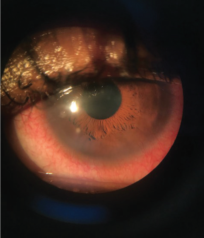 <p>Figure. A patient with an SCL complication, presumed contact lens peripheral ulcer, and scarring from a previous red eye event.</p>