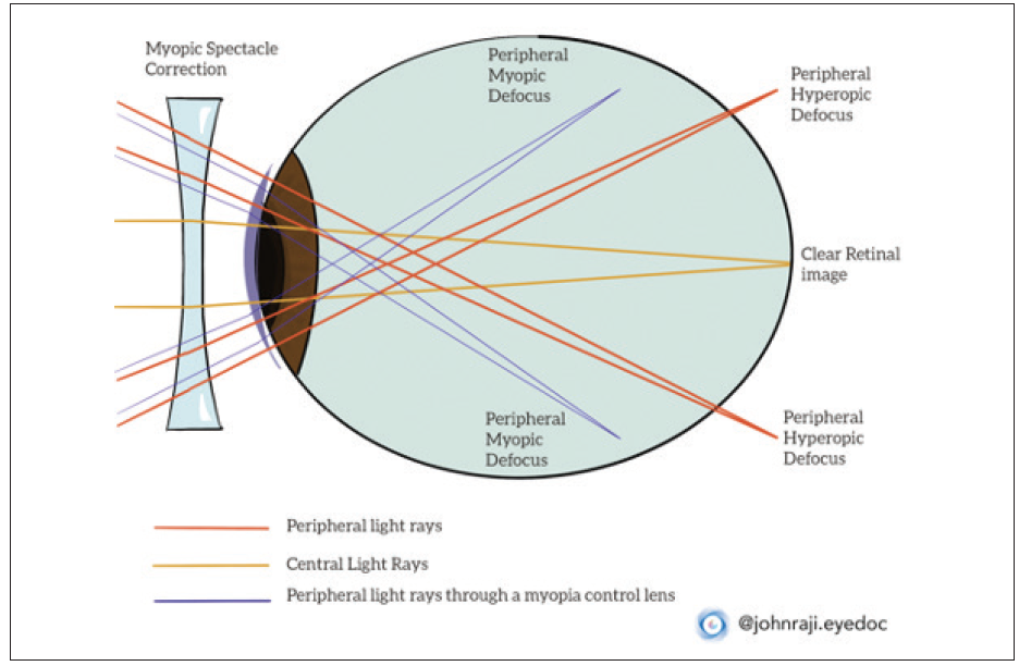 <p>Figure. A visual depiction of how standard myopic correction provides a clear central retinal image but can also create hyperopic defocus in the periphery, and how a myopia control soft multifocal contact lens can provide peripheral myopic defocus to slow myopia progression.</p>