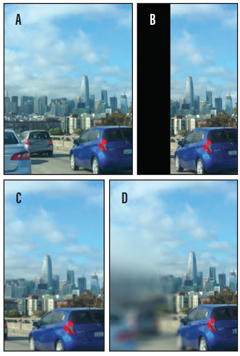 <p>Figure. A full visual scene without visual field loss (A). What a caretaker may think a patient sees based on visual field test results in the optometrist's office (B). Patients may think they have a full visual field even though the left side of their vision is missing (C), or they may have a blur zone in their area of visual field loss (D).</p>