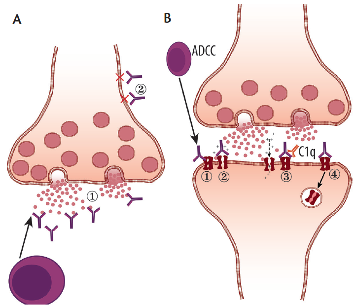 <p>Figure 1. Pathophysiology of antibody mediated autoimmune diseases. A depicts intracellular-directed antibodies, which are most likely T-cell mediated (1) or may reach their targets when vesicles fuse and synaptic contents are then released. Intracellular antibodies generally are unable to reach their intracellular targets (2). However, neuronal surface antibodies (B) are pathogenic in a variety of mechanisms: 1) through antibody-dependent cellular cytotoxicity (ADCC); 2) directly binding to receptors and interfering with function; 3) antibody binding then triggers the complement cascade (C1q); or 4) antibody binding results in receptor internalization, which in turn interferes with function.</p>