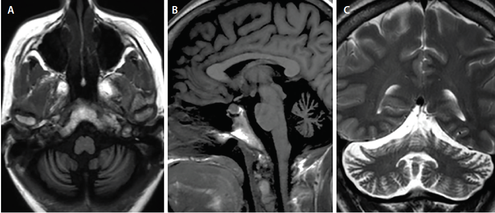 <p>Figure. Cerebellar atrophy in antimetabotropic glutamate receptor (antimGluR1)-associated encephalitis. This individual presented with catatonia and head titubation. Initial brain MRI was normal (not shown). After 2 years (A-C), there was asymmetric cerebellar atrophy, more pronounced on the right.</p>