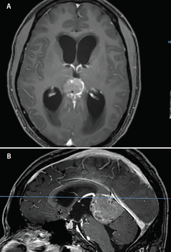 <p>Figure 1. Axial (A) and sagittal (B) MRI shows a large pineal region mass resulting in obstructive hydrocephalus.</p>