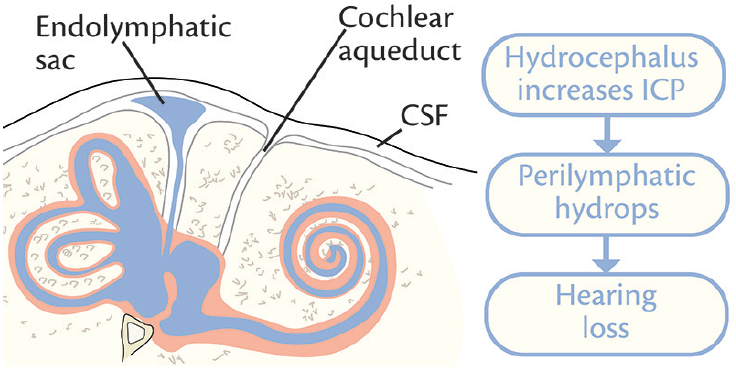 <p>Figure 2. Hypothesized mechanism, based on hydrodynamic theory, of sensorineural hearing loss associated with hydrocephalus.</p>