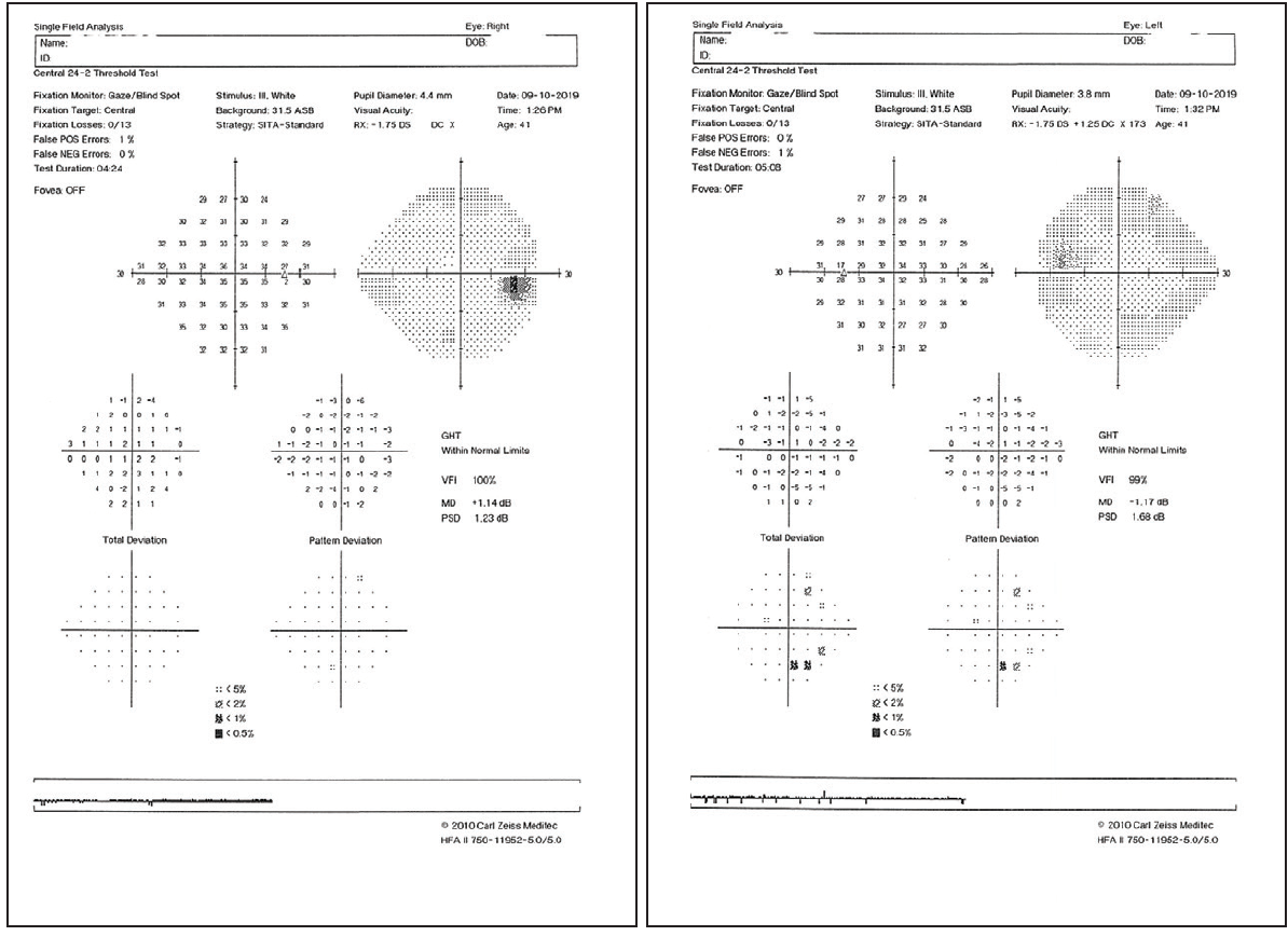<p>Figure 1. VFs are stable and essentially full in both eyes.</p>