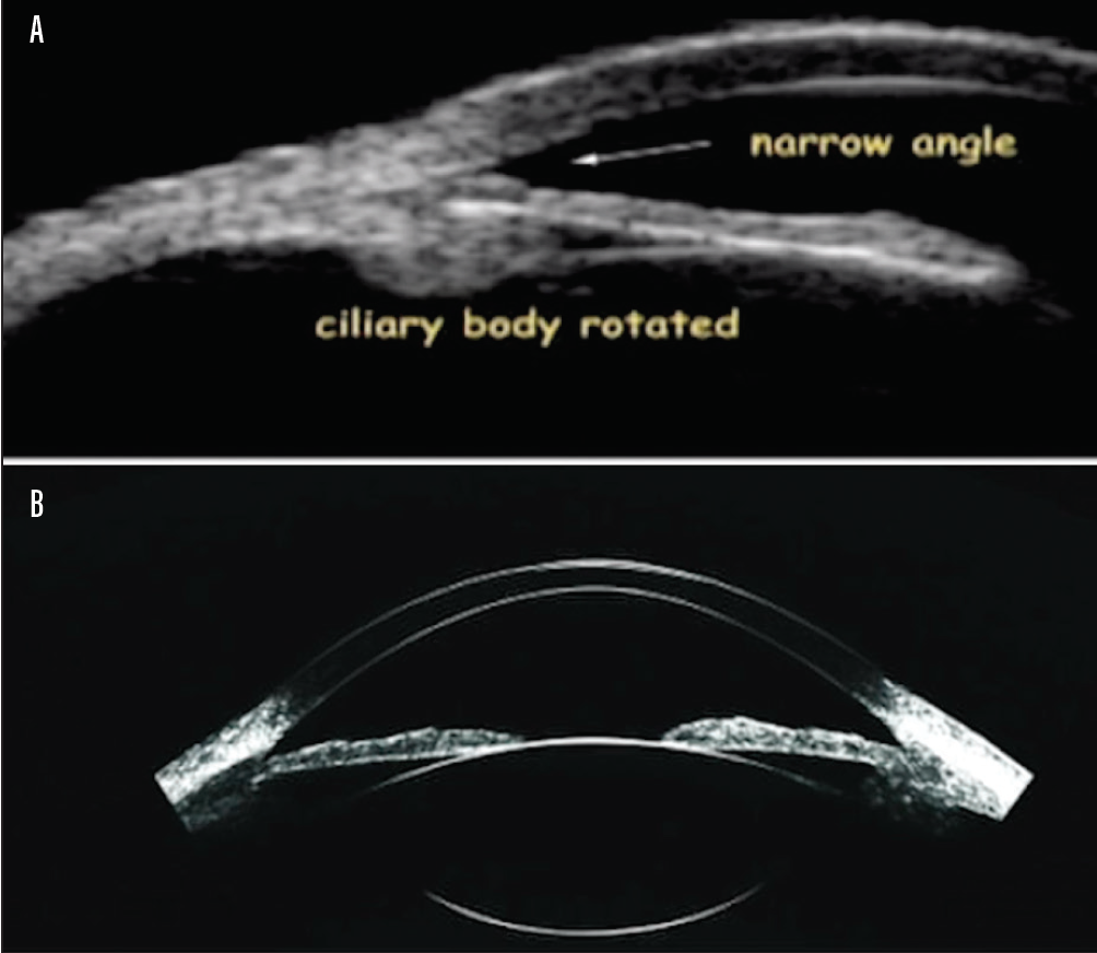 <p>Figure 1. Traditional UBM imaging (A) and UBM imaging with the ArcScan device (B).</p>
