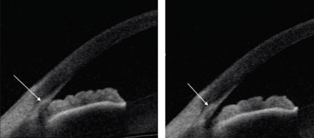 <p>Figure 2. AS-OCT can be used to assess the effects of laser peripheral iridotomy in patients with angle closure. Reprinted with permission from Kansara S, Blieden S, Alice C, et al. Anterior chamber angle anatomy in primary angle closure spectrum eyes.<i> J Glaucoma</i>. 2016;25(5):e469-e474.</p>