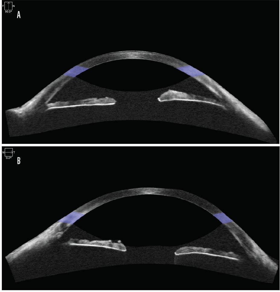<p>Figure 1. AS-OCT imaging of the right eye (A) and left eye (B) using the Cirrus HD-OCT 5000/500 (Carl Zeiss Meditec) and an anterior chamber lens.<br />