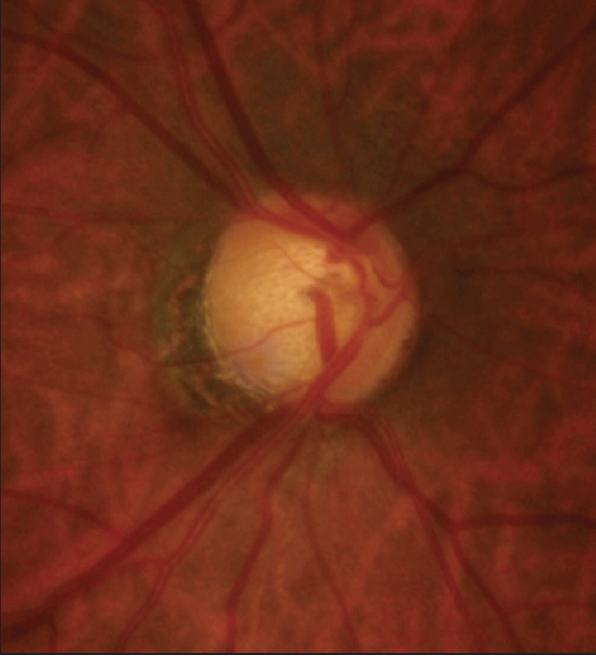 <p>Figure 1. A resolving disc hemorrhage and inferior thinning of the RNFL were observed in the patient's right eye.<br />
