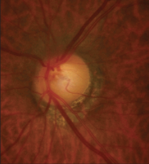 <p>Figure 2. Peripapillary atrophy and inferior thinning of the RNFL were observed in the patient's left eye.<br />