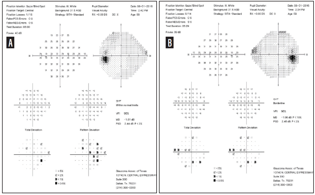 <p>Figure 3. VF testing showed a relatively stable field in the left eye (A) and a mild nasal step in the right eye (B).<br />