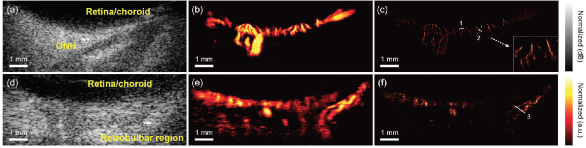 <p>Figure 1. The conventional B-mode images (A, D), power Doppler imaging with microbubbles (B, E), and reconstructed super-resolution microvessel imaging of the posterior pole of a rabbit eye (C, F). Images A through C were collected at one scan direction, and D through F were collected at another orthogonal direction. The white dashed line points to a zoomed-in view of the choroidal vessel. Reprinted with permission from Qian et al.<sup>14</sup></p>