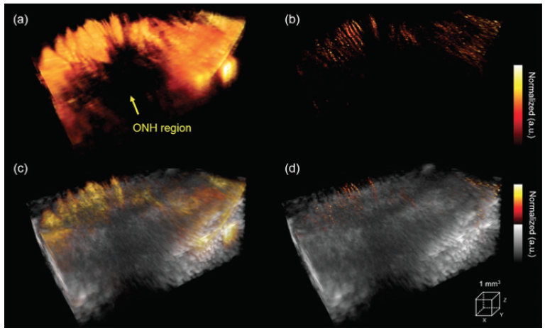 <p>Figure 2. 3D volume imaging of the posterior pole of a rabbit eye close to the ONH shows power Doppler imaging with microbubbles (A) and super-resolution microvessel imaging (B). The corresponding vessel distribution images are superimposed on the B-mode images (C, D). Reprinted with permission from Qian et al.<sup>14</sup></p>