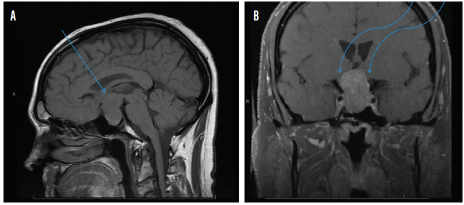 <p>Figure 2. Sagittal midline precontrast T1-weighted MRI showing enlargement of the sella turcica and superior extension of a pituitary macroadenoma (arrow, A). Coronal T1-weighted MRI with contrast showing the optic chiasm stretched and compressed over the mass (arrows, B).</p>