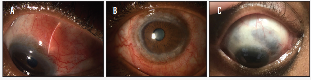 <p>Figure 1. Note the anterior displacement of the slit-lamp beam, indicating a firm underlying nodule of scleral edema (A). Evidence of old chronic peripheral keratitis without active ulceration was also noted (B). The area of scleral translucency is indicated by the blueish-grey hue of the underlying choroid (C).</p>